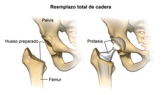 Reemplazo total de cadera