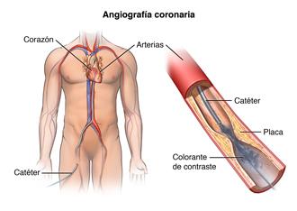El cuerpo de un hombre con un catéter insertado en la pierna y llega hasta una arteria del corazón. Se inyecta un colorante.